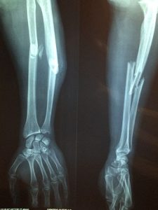 X-ray showing fractured bones of arm