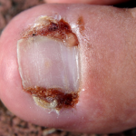 Ingrown toenail is a common cause of foot pain