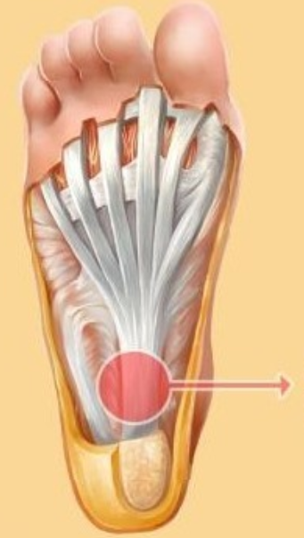 Plantar fascia is the ligament joining the heel to the toes