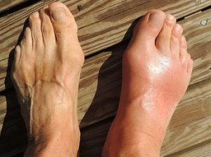 Foot problem can increase the risk of falling
